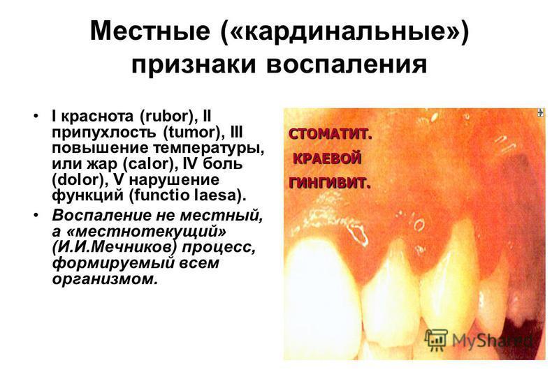 Местные («кардинальные») признаки воспаления I краснота (rubor), II припухлость (tumor), III повышение температуры, или жар (calor), IV боль (dolor), V нарушение функций (functio laesa). Воспаление не местный, а «местно текущий» (И.И.Мечников) процес