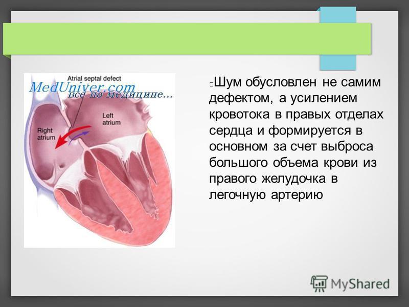 Шум обусловлен не самим дефектом, а усилением кровотока в правых отделах сердца и формируется в основном за счет выброса большого объема крови из правого желудочка в легочную артерию