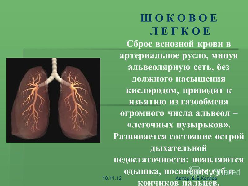 ШОК - ЭТО АКТИВНАЯ ЗАЩИТА ОРГАНИЗМА ОТ АГРЕССИИ СРЕДЫ Ш О К О В О Е Л Е Г К О Е Сброс венозной крови в артериальное русло, минуя альвеолярную сеть, без должного насыщения кислородом, приводит к изъятию из газообмена огромного числа альвеол – « легочн