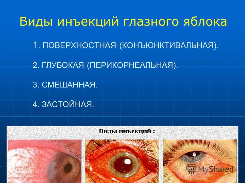 1. ПОВЕРХНОСТНАЯ (КОНЪЮНКТИВАЛЬНАЯ). 2. ГЛУБОКАЯ (ПЕРИКОРНЕАЛЬНАЯ). 3. СМЕШАННАЯ. 4. ЗАСТОЙНАЯ. Виды инъекций глазного яблока