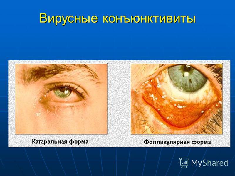Вирусные конъюнктивиты