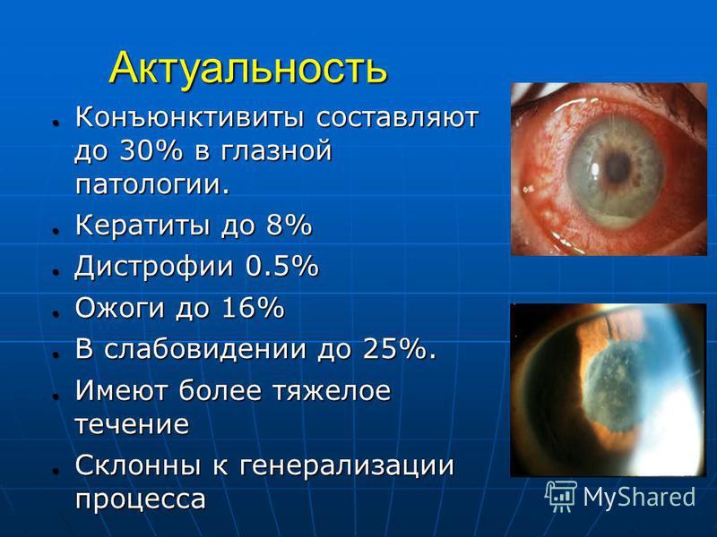 Актуальность Конъюнктивиты составляют до 30% в глазной патологии. Конъюнктивиты составляют до 30% в глазной патологии. Кератиты до 8% Кератиты до 8% Дистрофии 0.5% Дистрофии 0.5% Ожоги до 16% Ожоги до 16% В слабовидении до 25%. В слабовидении до 25%.