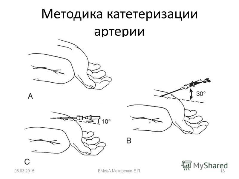 Методика катетеризации артерии 06.03.2015ВМедА Макаренко Е.П.18