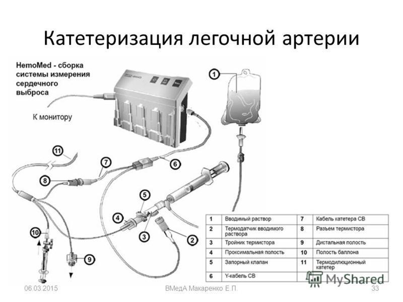 Катетеризация легочной артерии 06.03.2015ВМедА Макаренко Е.П.33