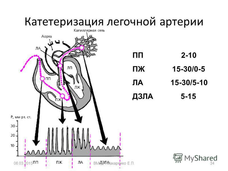 Катетеризация легочной артерии ПП 2-10 ПЖ 15-30/0-5 ЛА 15-30/5-10 ДЗЛА 5-15 06.03.2015ВМедА Макаренко Е.П.34