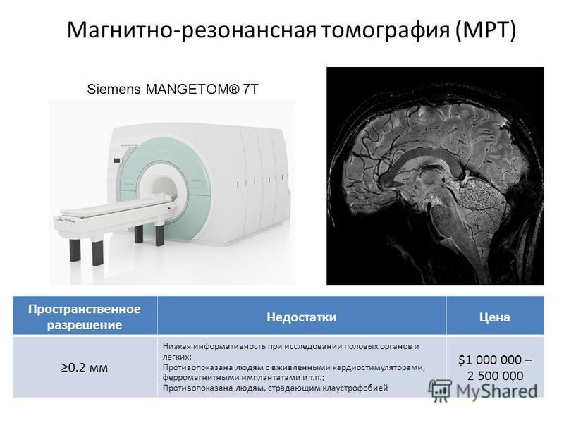 Магнитно-резонансная томография (МРТ) Siemens MANGETOM® 7T Пространственное разрешение Недостатки Цена 0.2 мм Низкая информативность при исследовании половых органов и легких; Противопоказана людям с вживленными кардиостимуляторами, ферромагнитными и