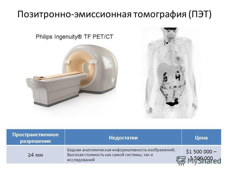 Позитронно-эмиссионная томография (ПЭТ) Philips Ingenuity® TF PET/CT Пространственное разрешение Недостатки Цена 4 мм Бедная анатомическая информативность изображений; Высокая стоимость как самой системы, так и исследований $1 500 000 – 3 500 000