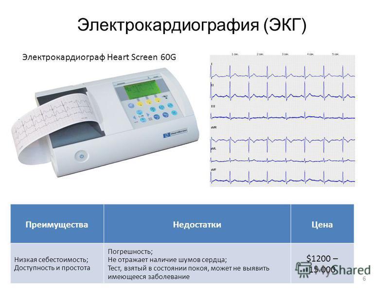 Электрокардиография (ЭКГ) Преимущества Недостатки Цена Низкая себестоимость; Доступность и простота Погрешность; Не отражает наличие шумов сердца; Тест, взятый в состоянии покоя, может не выявить имеющееся заболевание $1200 – 15 000 Электрокардиограф