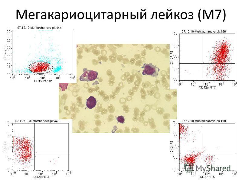 Мегакариоцитарный лейкоз (М7)