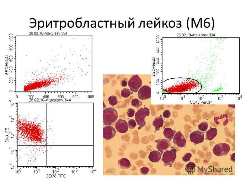 Эритробластный лейкоз (М6)