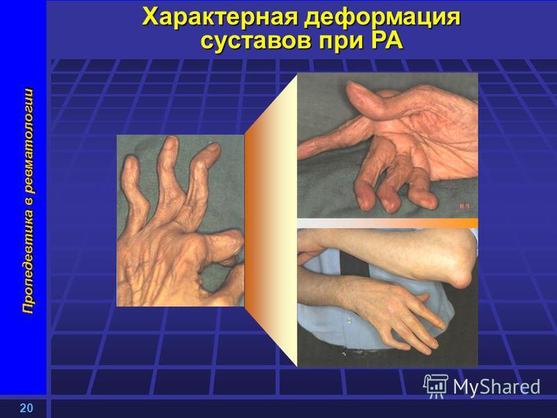 20 Пропедевтика в ревматологии Характерная деформация суставов при РА