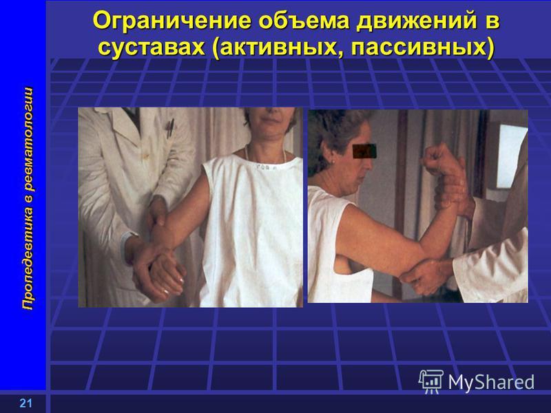 21 Пропедевтика в ревматологии Ограничение объема движений в суставах (активных, пассивных)