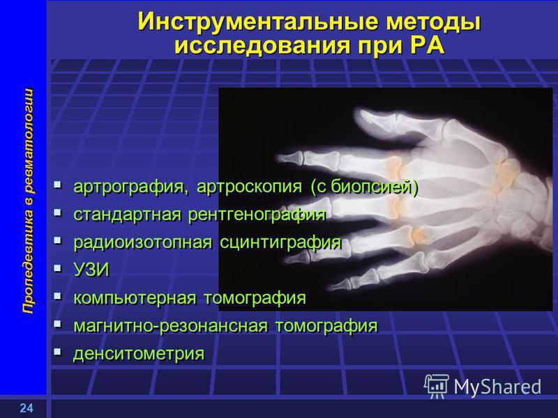 24 Пропедевтика в ревматологии Инструментальные методы исследования при РА артрография, артроскопия (с биопсией) стандартная рентгенография радиоизотопная сцинтиграфия УЗИ компьютерная томография магнитно-резонансная томография денситометрия артрогра