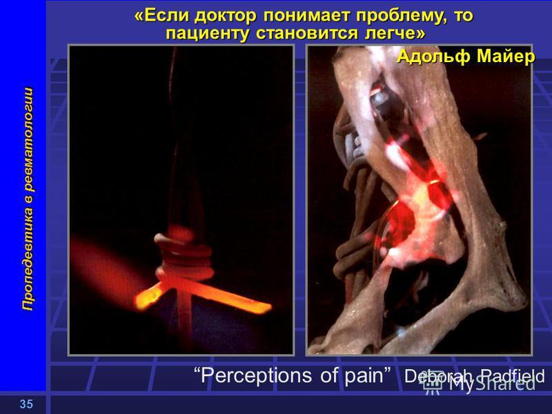 35 Пропедевтика в ревматологии «Если доктор понимает проблему, то пациенту становится легче» Адольф Майер Perceptions of pain Deborah Padfield