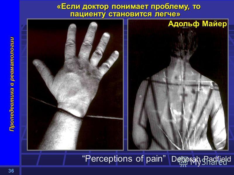 36 Пропедевтика в ревматологии «Если доктор понимает проблему, то пациенту становится легче» Адольф Майер Perceptions of pain Deborah Padfield