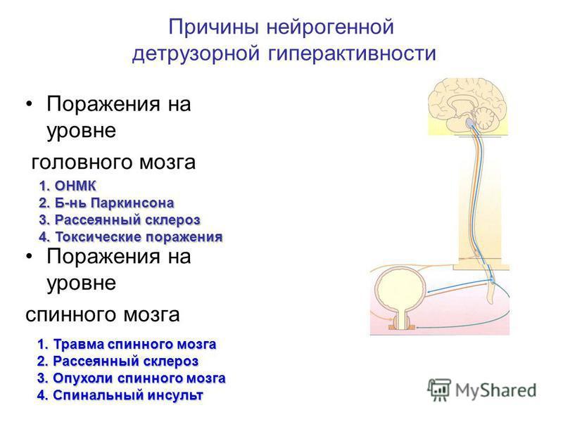 Причины нейрогенной детрузорной гиперактивности Поражения на уровне головного мозга Поражения на уровне спинного мозга 1. ОНМК 2. Б-нь Паркинсона 3. Рассеянный склероз 4. Токсические поражения 1. Травма спинного мозга 2. Рассеянный склероз 3. Опухоли
