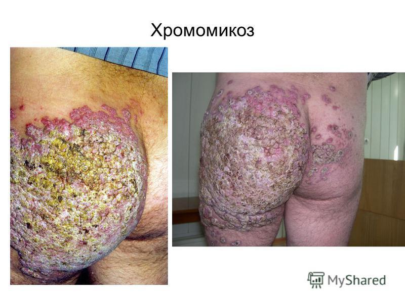 Хромомикоз