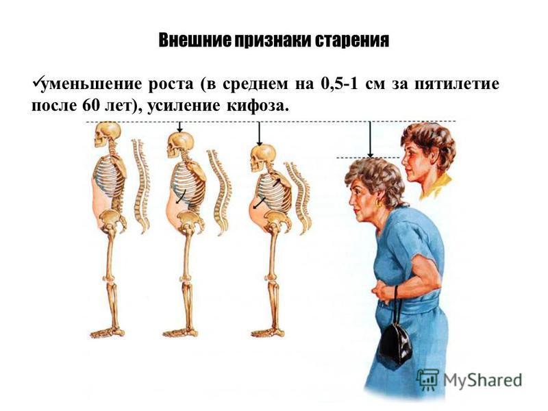 Внешние признаки старения уменьшение роста (в среднем на 0,5-1 см за пятилетие после 60 лет), усиление кифоза.