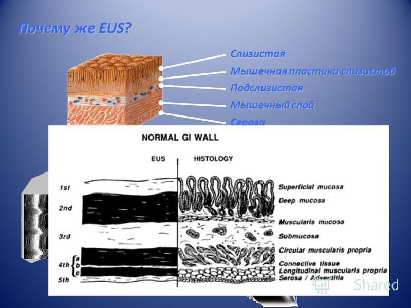Почему же EUS? Мышечная пластика слизистой Подслизистая Слизистая Мышечный слой Сероза Endoscope: Observe and Biopsy the mucosal layer EUS: Observe and Biopsy beyond the mucosal layer