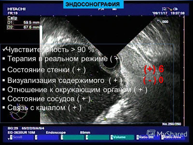 ЭНДОСОНОГРАФИЯ Чувствительность > 90 % Чувствительность > 90 % Терапия в реальном режиме ( + ) Терапия в реальном режиме ( + ) Состояние стенки ( + ) (+) 6 Состояние стенки ( + ) (+) 6 Визуализация содержимого ( + ) ( - ) 0 Визуализация содержимого (