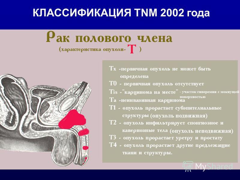 КЛАССИФИКАЦИЯ TNM 2002 года (опухоль подвижная) (опухоль неподвижная) - участок гиперемии с мокнущей поверхностью