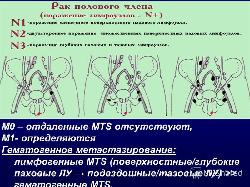 M0 – отдаленные MTS отсутствуют, М1- определяются Гематогенное метастазирование: лимфогенные MTS (поверхностные/глубокие паховые ЛУ подвздошные/тазовые ЛУ) >> гематогенные MTS.