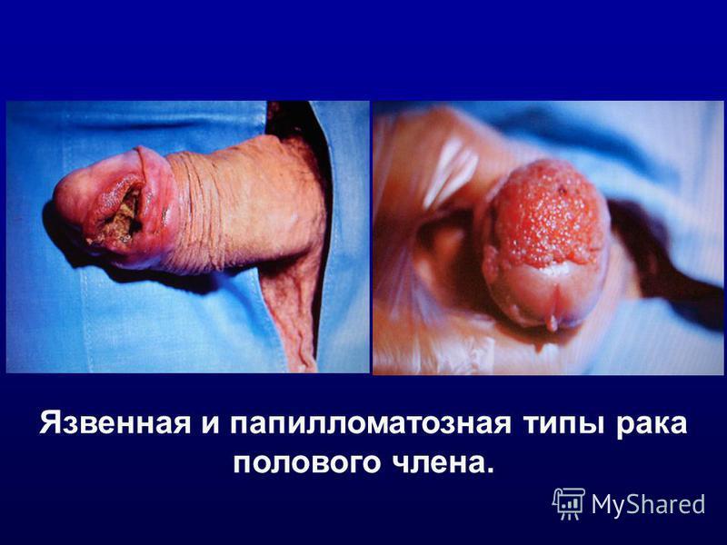 Язвенная и папилломатозная типы рака полового члена.