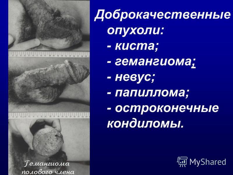 Доброкачественные опухоли: - киста; - гемангиома; - невус; - папиллома; - остроконечные кондиломы.