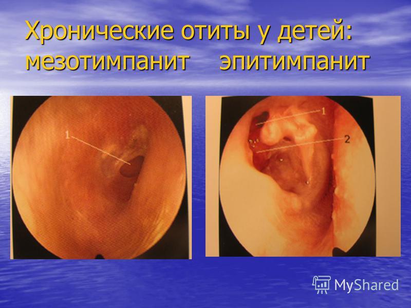 Хронические отиты у детей: мезотимпанит эпитимпанит