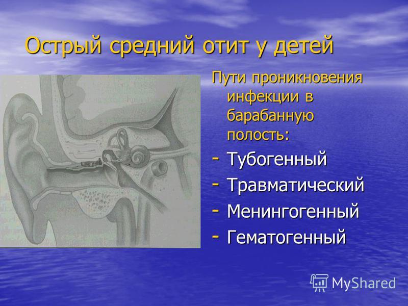 Острый средний отит у детей Пути проникновения инфекции в барабанную полость: - Тубогенный - Травматический - Менингогенный - Гематогенный
