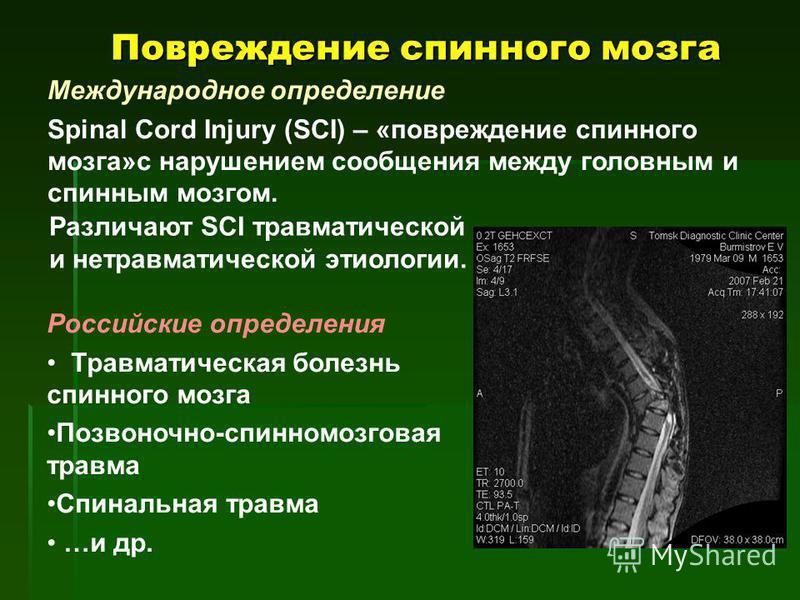 Повреждение спинного мозга Международное определение Spinal Cord Injury (SCI) – «повреждение спинного мозга»с нарушением сообщения между головным и спинным мозгом. Российские определения Травматическая болезнь спинного мозга Позвоночно-спинномозговая