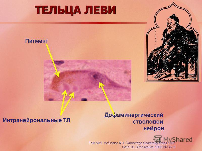 ТЕЛЬЦА ЛЕВИ Пигмент Дофаминергический стволовой нейрон Интранейрональные ТЛ Esiri MM, McShane RH. Cambridge University Press 1997 Gelb DJ. Arch Neurol 1999;56:33–9