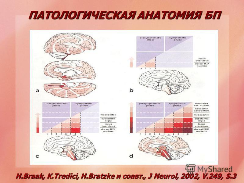 H.Braak, K.Tredici, H.Bratzke и соавт., J Neurol, 2002, V.249, S.3 ПАТОЛОГИЧЕСКАЯ АНАТОМИЯ БП
