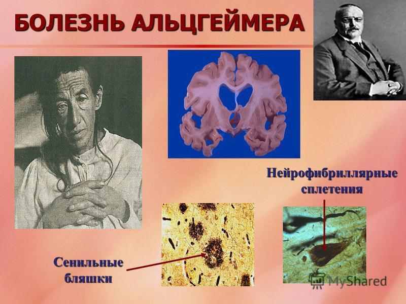 БОЛЕЗНЬ АЛЬЦГЕЙМЕРА Сенильные бляшки Нейрофибриллярные сплетения