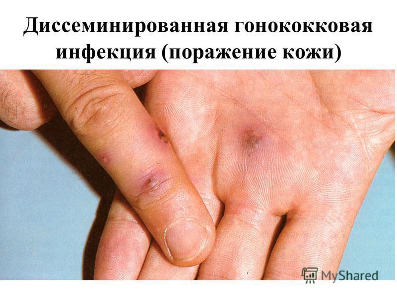 Диссеминированная гонококковая инфекция (поражение кожи)