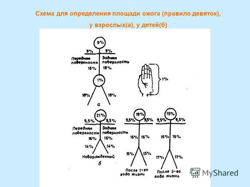 Схема для определения площади ожога (правило девяток), у взрослых(а), у детей(б)