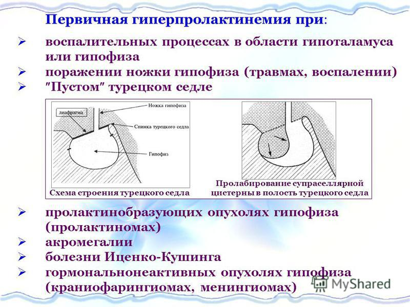 Первичная гиперпролактинемия при воспалительных процессах в области гипоталамуса или гипофиза поражении ножки гипофиза (травмах, воспалении) Пустом турецком седле пролактинобразующих опухолях гипофиза (пролактиномах) акромегалии болезни Иценко-Кушинг