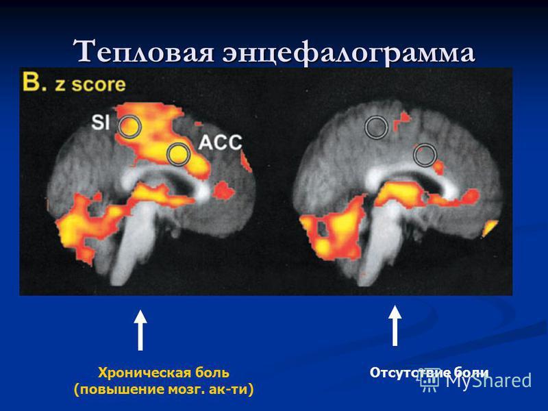 Тепловая энцефалограмма Отсутствие боли Хроническая боль (повышение мозг. ак-ти)