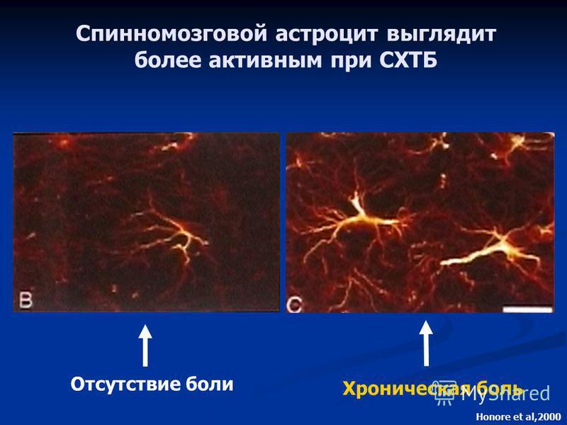 Отсутствие боли Хроническая боль Honore et al,2000 Спинномозговой астроцит выглядит более активным при СХТБ