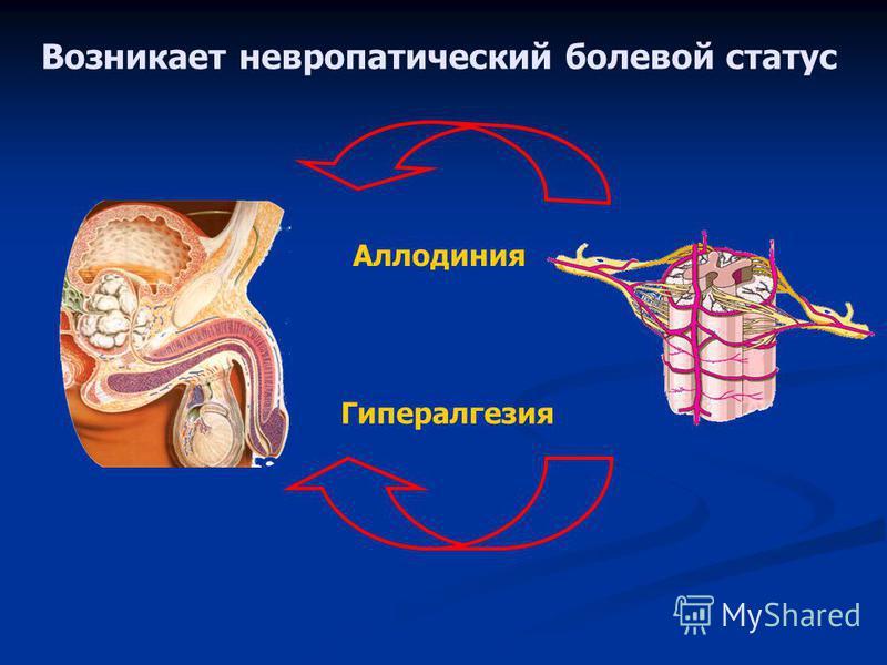 Возникает невропатический болевой статус Аллодиния Гипералгезия