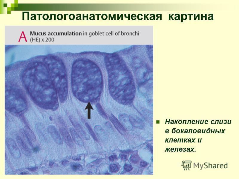Накопление слизи в бокаловидных клетках и железах. Патологоанатомическая картина