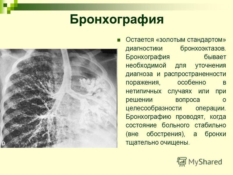 Бронхография Остается «золотым стандартом» диагностики бронхоэктазов. Бронхография бывает необходимой для уточнения диагноза и распространенности поражения, особенно в нетипичных случаях или при решении вопроса о целесообразности операции. Бронхограф