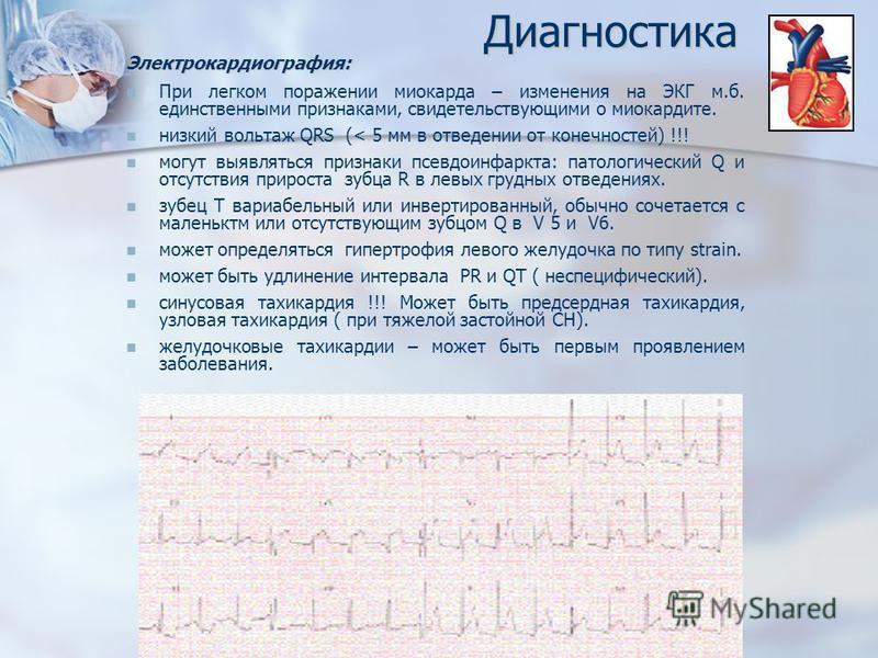 Диагностика Электрокардиография: При легком поражении миокарда – изменения на ЭКГ м.б. единственными признаками, свидетельствующими о миокардите. низкий вольтаж QRS (< 5 мм в отведении от конечностей) !!! могут выявляться признаки псевдо инфаркта: па
