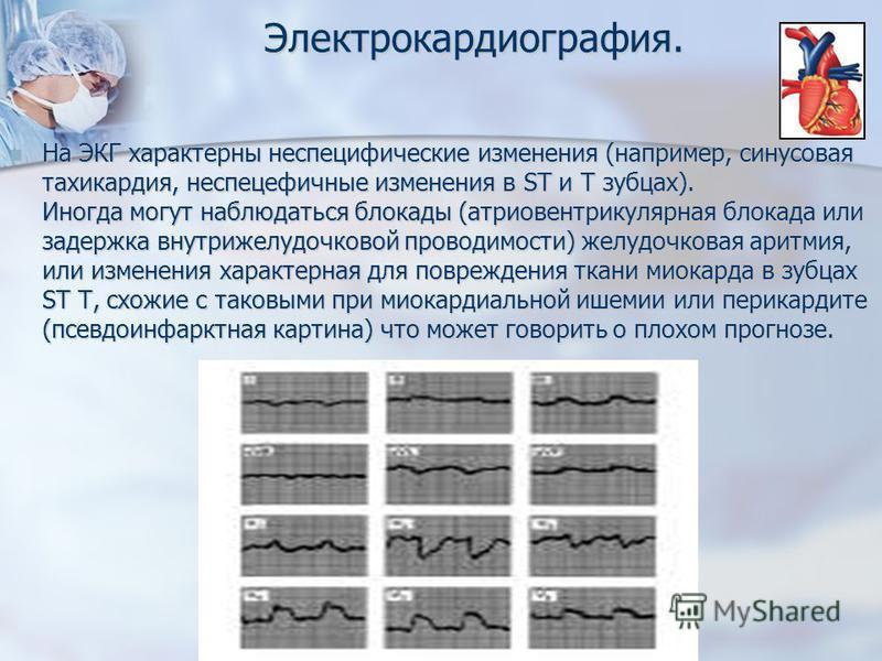 Электрокардиография. На ЭКГ характерны неспецифические изменения (например, синусовая тахикардия, неспецифичные изменения в ST и T зубцах). Иногда могут наблюдаться блокады (атриовентрикулярная блокада или задержка внутрижелудочковой проводимости) же