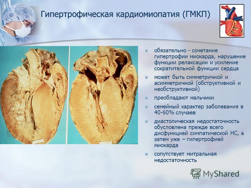 Гипертрофическая кардиомиопатия (ГМКП) обязательно - сочетание гипертрофии миокарда, нарушение функции релаксации и усиление сократительной функции сердца обязательно - сочетание гипертрофии миокарда, нарушение функции релаксации и усиление сократите