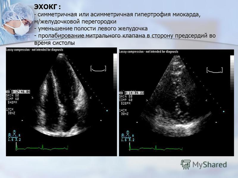 ЭХОКГ : - симметричная или асимметричная гипертрофия миокарда, м/желудочковой перегородки - уменьшение полости левого желудочка - пролабирование митрального клапана в сторону предсердий во время систолы