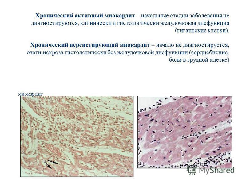 миокардит Хронический активный миокардит – начальные стадии заболевания не диагностируются, клинически и гистологически желудочковая дисфункция (гигантские клетки). Хронический персистирующий миокардит – начало не диагностируется, очаги некроза гисто