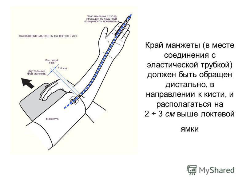 Край манжеты (в месте соединения с эластической трубкой) должен быть обращен дистально, в направлении к кисти, и располагаться на 2 ÷ 3 см выше локтевой ямки