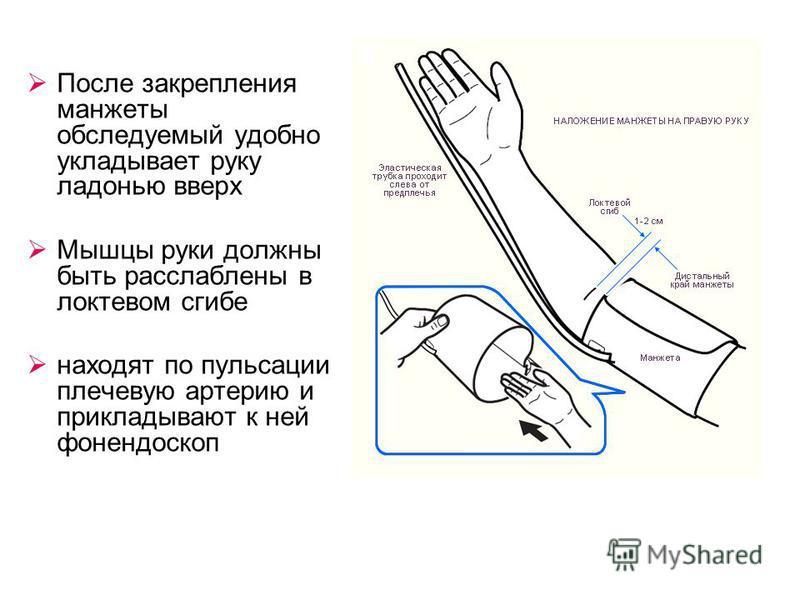 После закрепления манжеты обследуемый удобно укладывает руку ладонью вверх Мышцы руки должны быть расслаблены в локтевом сгибе находят по пульсации плечевую артерию и прикладывают к ней фонендоскоп