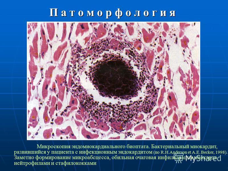 П а т о м о р ф о л о г и я Микроскопия эндомиокардиального биоптата. Бактериальный миокардит, развившийся у пациента с инфекционным эндокардитом (по R.H.Anderson et A.E. Becker, 1998). Заметно формирование микро абсцесса, обильная очаговая инфильтра